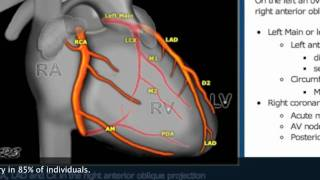 This Video Can Save Your Life Pt2 Catheter Angiogram Stent.mov