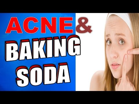 How to Treat Acne, Dark Circles & Spots using Baking Soda