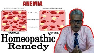 Anemia - Discussion and Treatment in Homeopathy by Dr. P.S Tiwari