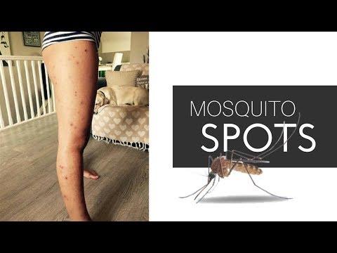 Skincare l Ways to Treat Dark Spots on LEGS l Mosquito Bites - Hyperpigmentation 2017 -Dermatologist