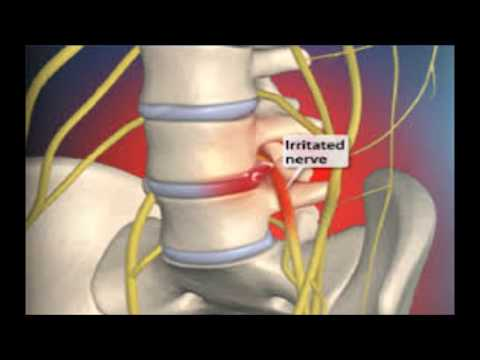 Pain Relief Sciatica - How To Ease Sciatica Pain In Leg