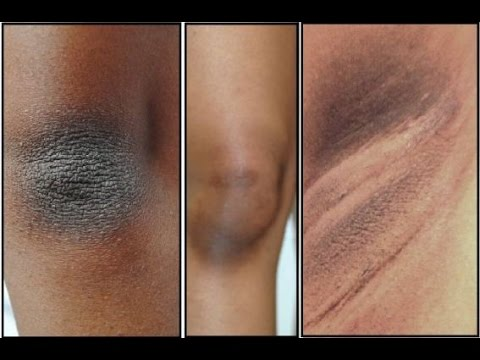 How to Lighten Dark Knees and Elbows Naturally At Home,Skin Whitening