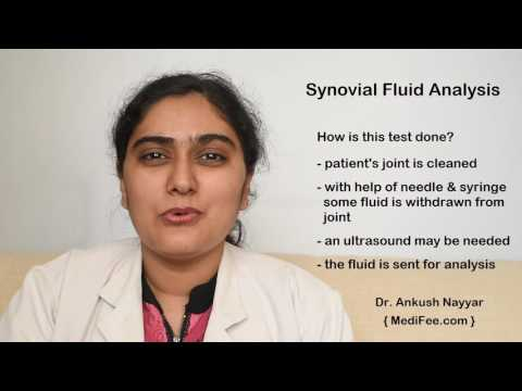 Synovial Fluid Analysis Test - Procedure and Result Interpretation