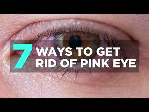 7 Ways to Get Rid of Pink Eye  | Health