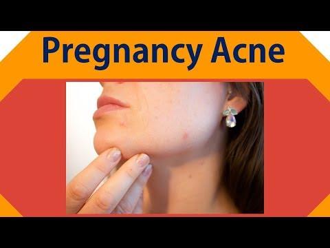 Pregnancy Acne  | Apple Cider Vinegar, Baking Soda Remedy