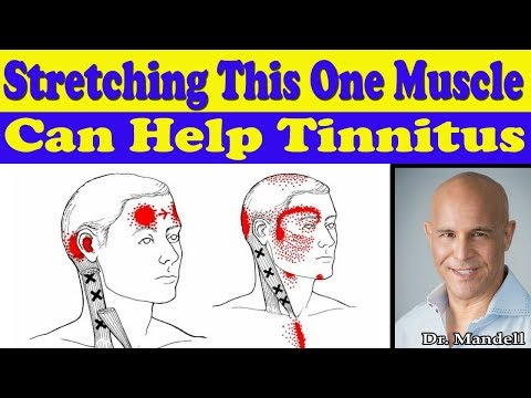 Stretching This One Neck Muscle Can Help Your Tinnitus - Dr Alan Mandell, DC