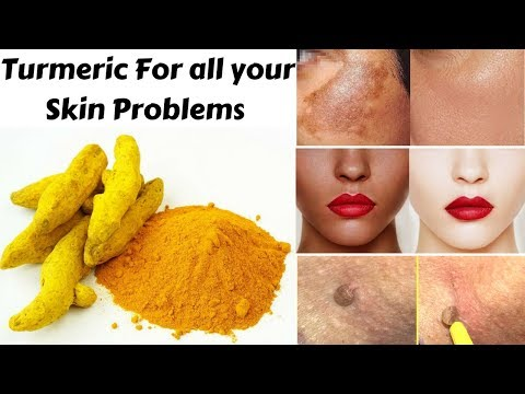 Top 3 Ways To Use Turmeric For Skin Pigmentation, Skin Whitening & Skin Tags | Home Remedies