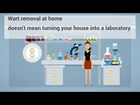 wart removal - safe and effective methods of wart removal