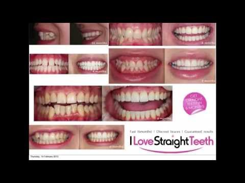 Types of Crooked Teeth that can be straightened