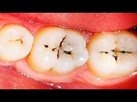 How to Get Rid of Cavities | How to Reverse Cavities in Teeth