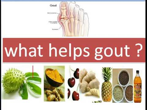 What Helps Gout ? Diet, Lose weight or Medication