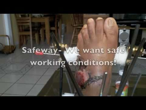 Safeway employee almost loses foot at Distribution Center