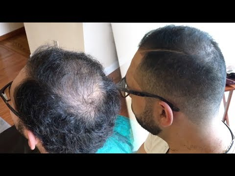 Tip #19: Regrow Thinning Hair! | How to Cut and Fade Balding Hair | 5 Minutes | HD