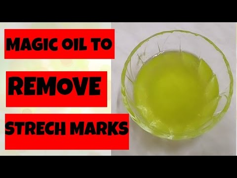 How to remove Stretch marks after Pregnancy   Home Remedy to prevent Stretch marks