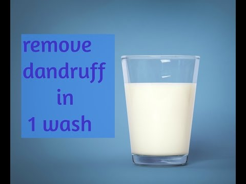 How to remove dandruff naturally in 1 wash!!