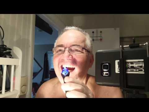 How to Fix Teeth with Liquid Plastic