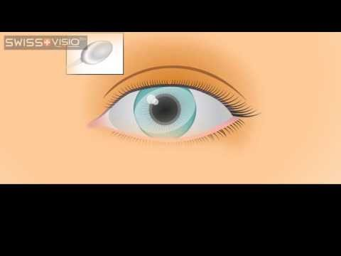 Astigmatism: What is a Cylinder?
