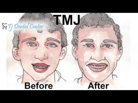 Temporomandibular Joint (TMJ) Disorder Treatment Discussed by Oral Surgeon – Tijuana, Mexico