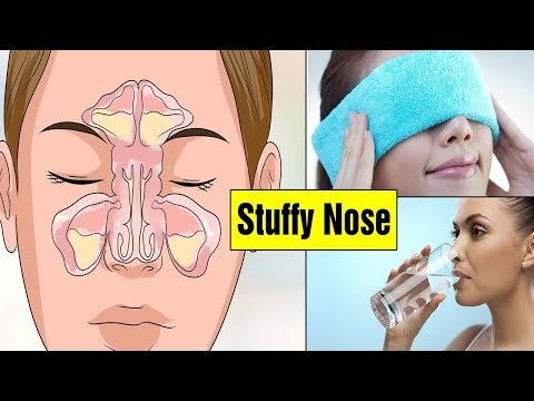 Top 6 Home Remedies for Stuffy Nose|How To Get Rid of Stuffy Nose