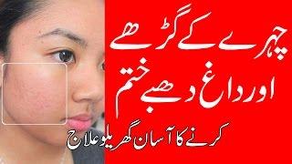 Chehre Ke Gadde Aur Daag Dhabe Door Karne Ka Asan Gharelu Ilaj | Removing Acne Scars