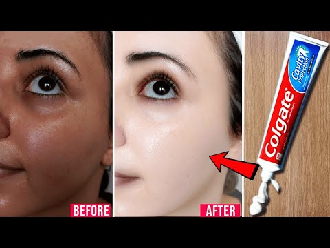 Apply Toothpaste on Your Skin and See Magical Result within 1 Hour │Amazing Toothpaste Beauty Hacks