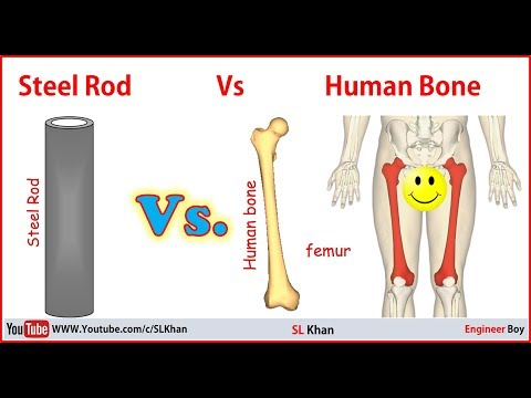steel vs human bone, which one is stronger
