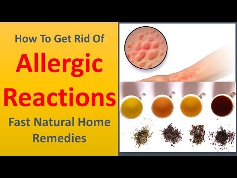 How to Get rid of Allergic reactions Fast Natural Home Remedies.|Teas.