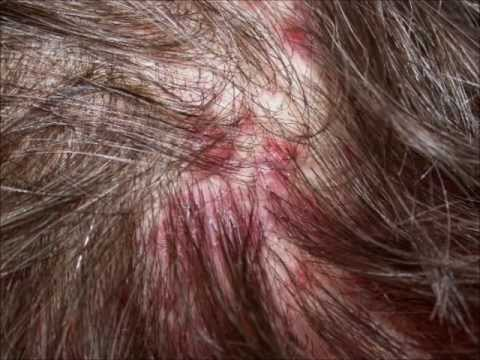 Scalp acne: causes, scalp acne treatment, prevention and help