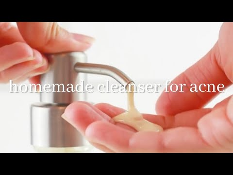HOMEMADE FACE WASH FOR ACNE