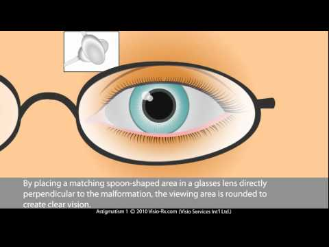 Cylinder in Prescription Glasses. Astigmatism Correction.