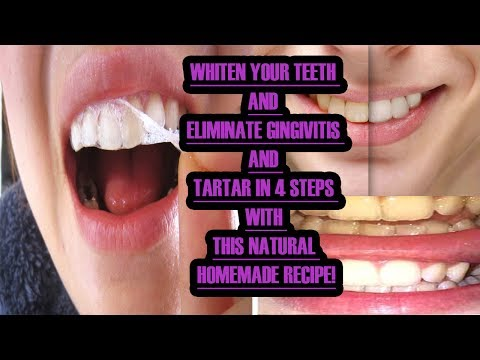 WHITEN YOUR TEETH AND ELIMINATE GINGIVITIS AND TARTAR IN 4 STEPS WITH THIS NATURAL HOMEMADE RECIPE!