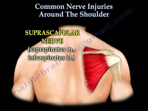 Shoulder Nerve injury ,Injuries  - Everything You Need To Know - Dr. Nabil Ebraheim