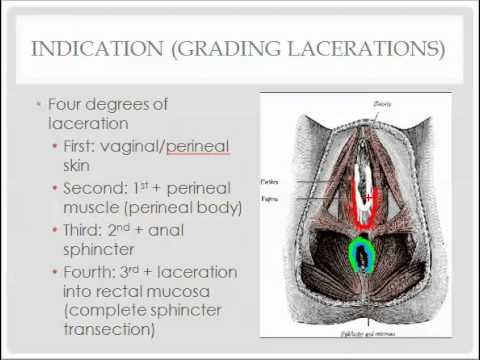 perineal laceration repair - description, indications, and questions