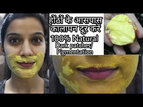 How To Remove Dark Black Patches,Dark Spots, Pigmentation Around Mouth Area   Super Style Tips