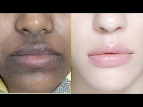 How To Remove Dark Black Patches, Dark Spots & Hyperpigmentation Around Your Mouth | Home Remedies