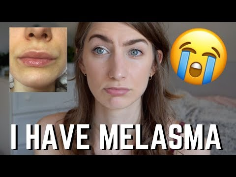 I HAVE MELASMA 😭