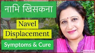 Navel Displacement Treatment | Navel Dislocation | Nabhi Treatment
