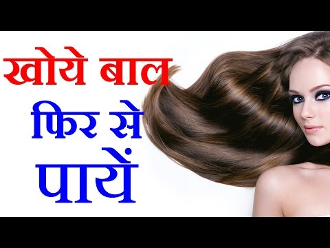How To Grow Long and thicken Hair Naturally and Faster 100% Work (Hair Growth Treatment) In Hindi #3