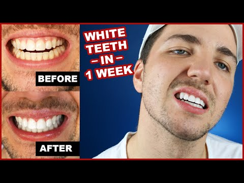 How To Get White Teeth In 1 Week |  Smile Brilliant