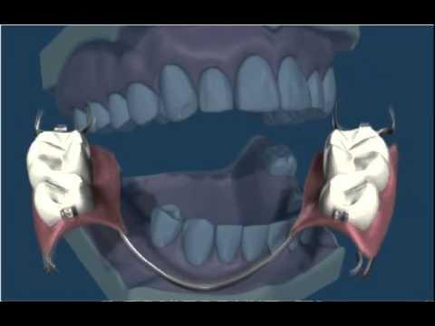 Dentures Removable  Partial 1