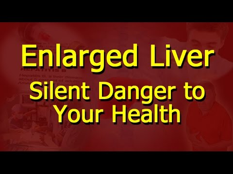 Enlarged Liver - Silent Danger to Your Health