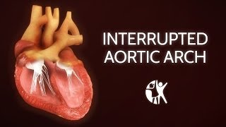 Interrupted Aortic Arch − Ventricular Septic Defect