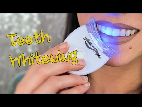 How I Whiten My Teeth! | White With Style