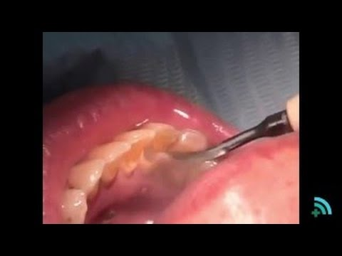 Tartar removal teeth | Removing plaque from teeth basically