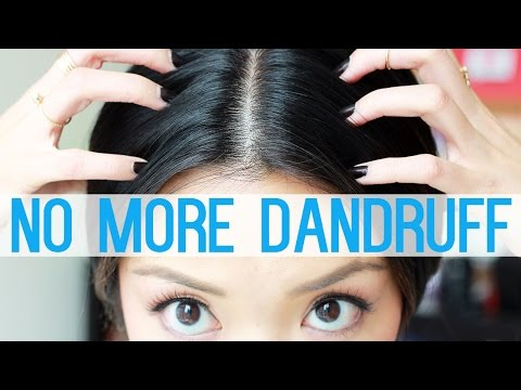 HOW TO: Get Rid Of Dandruff