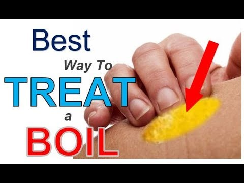 The BEST Way to TREAT a Boil (3 Simple Steps) | Best REMEDY for Treating Boils FAST
