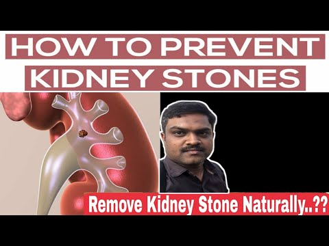 How to dissolve kidney stone naturally in home