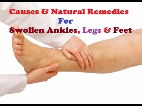 Causes, Symptoms and Remedies for Swollen ankle, legs and feet