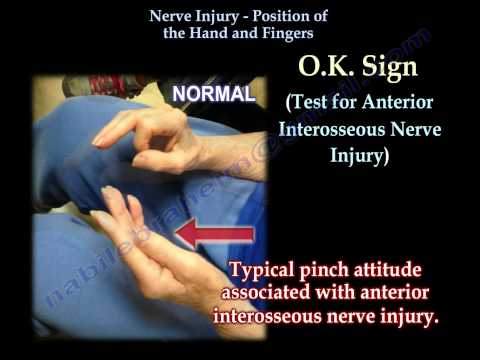 Nerve Injury, Positions Of The Hand - Everything You Need To Know - Dr. Nabil Ebraheim