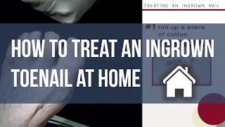 How To Fix An Ingrown Toenail At Home Tutorial